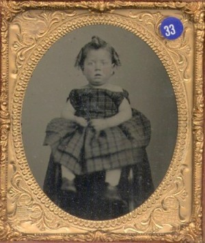 Ambrotype of a Girl with Chipmunk Cheeks
